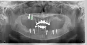 Full Mouth Rehabilitation with Sinus Lift & Ridge Augmentation