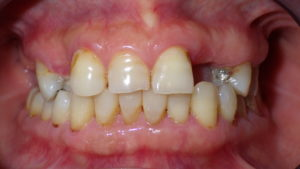 Front Teeth Replacement